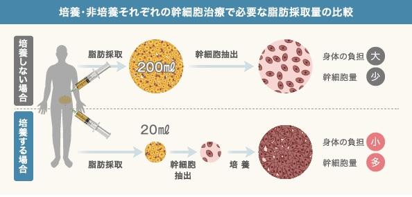 幹細胞培養・非培養の違い