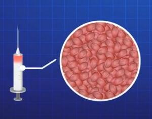 培養幹細胞の注入