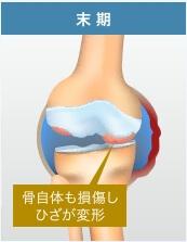 膝関節症・末期