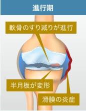 膝関節症・進行期