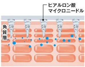 マイクロニードル